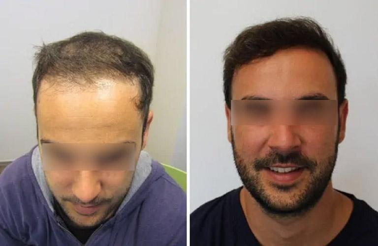 Hair Transplant - Before-After 1