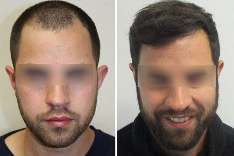 Hair Transplant - Before-After 2