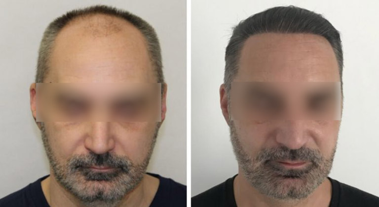 Hair Transplant - Before-After 3