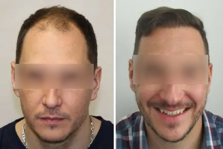 Hair Transplant - Before-After 4